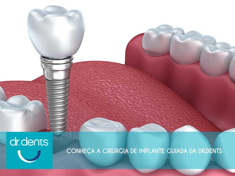 cirurgia de dente guiada