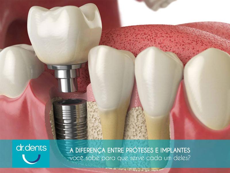 diferença de prótese e implante