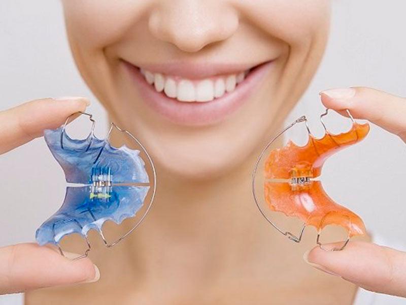 contenção de dente