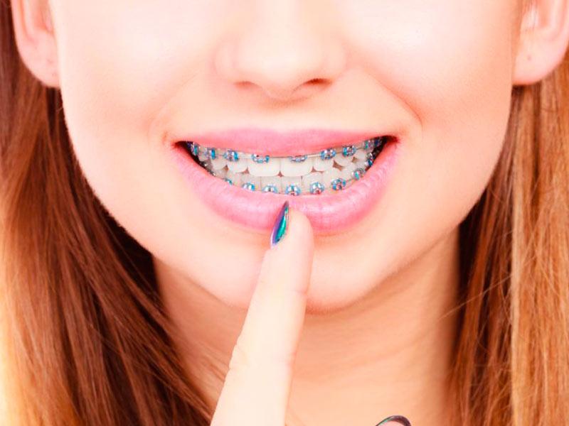 dentista que coloca aparelho