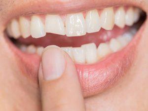 dente quebrado por cárie