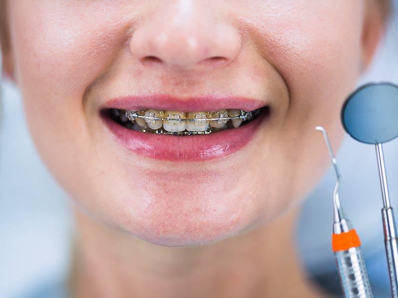 dente nascendo torto